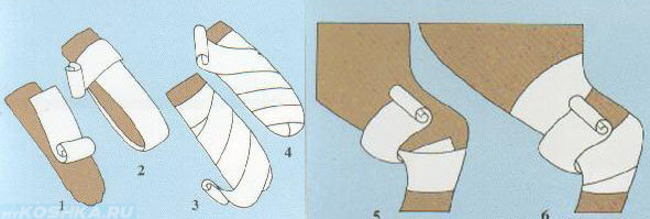 Как сделать повязку на лапу 98