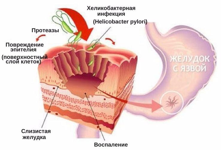 Почему болит желудок утром натощак